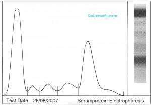 Гистограмма белков при электрофорезе на ацетатной гелевой плёнке