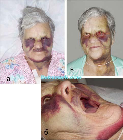 Экхимоз после удаления катаракты при неизвестном количестве тромбоцитов