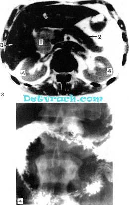 Компьютерная томограмма поджелудочной железы