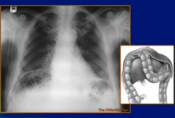 Рентген снимок при синдроме Хилаидити