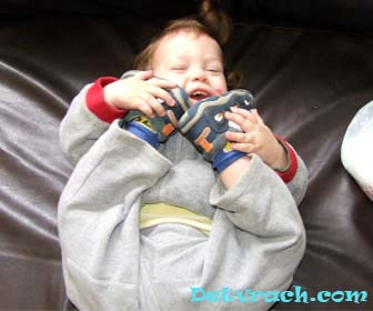 Синдром Холта - Орама фото. Синдром «рука-сердце»