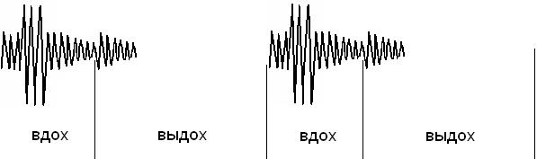Схематическое изображение звука «бронхиальный хлопок»