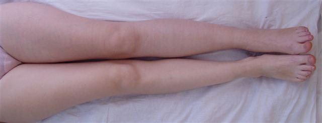 Отёк и цианоз левой ноги. Фото на 5-й день, когда отёк заметно уменьшился.