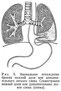 в виде дополнительной доли легкого, бронх которой отходит от пищевода. Доля имеет автономное кровоснабжение, чаще всего из брюшного отдела аорты